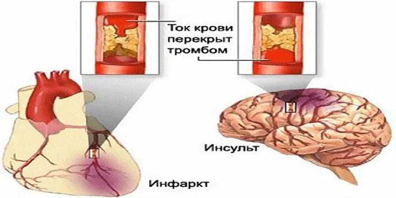 Схема инфаркта и инсульта