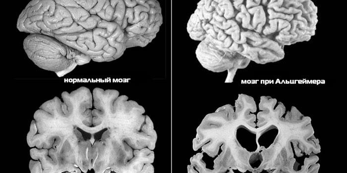 Вид мозга до и после болезни