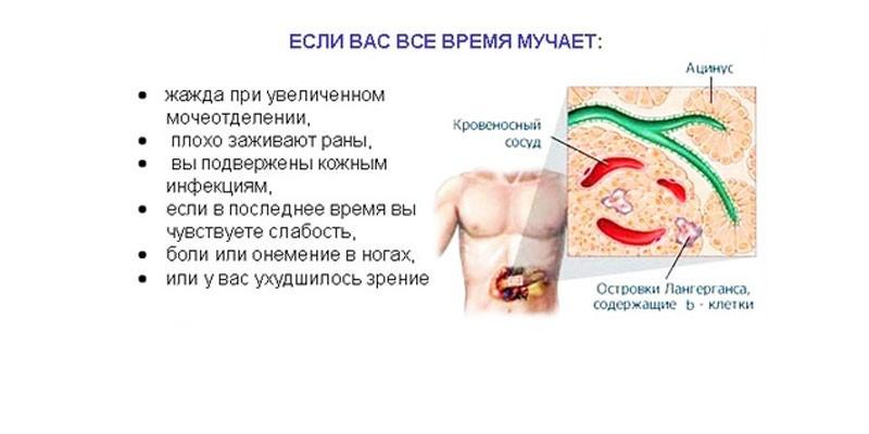Симптомы повышенного сахара