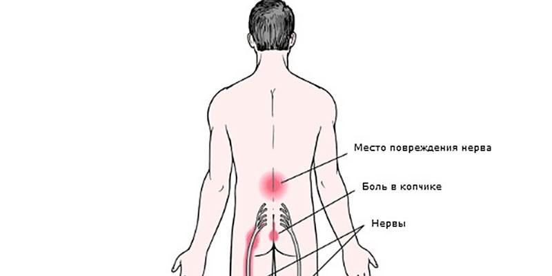 Схема поражения нерва