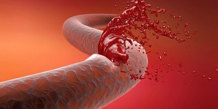 Разрыв кровеносного сосуда