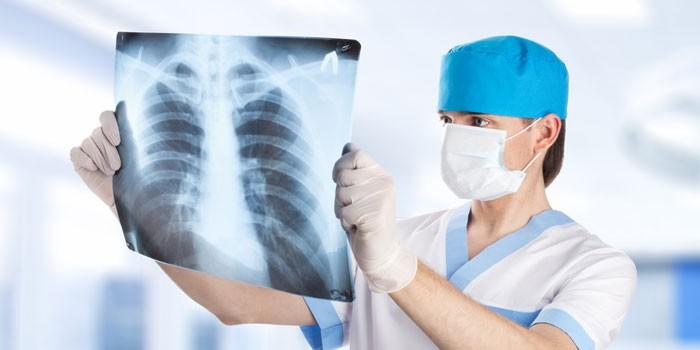 Медик смотрит на рентгеновский снимок легких