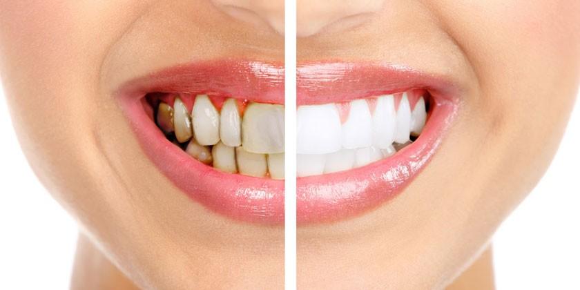 Фото зубов до и после винирования