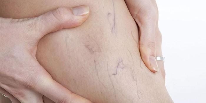 Сосудистая сетка на ноге у женщины