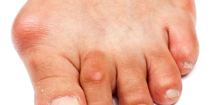 Воспаление сустава большого пальца