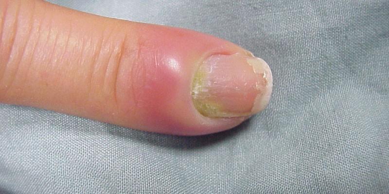 Воспаление околоногтевого валика на руке