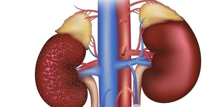 Здоровая почка и пораженная диабетической нефропатией
