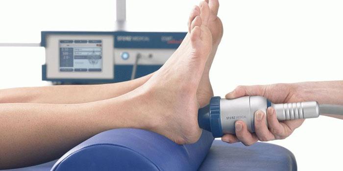Женщине проводят сеанс ударно-волновой терапии