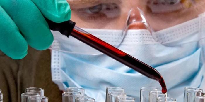 Медик делает анализ крови