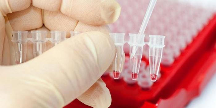 Анализы крови в пробирках