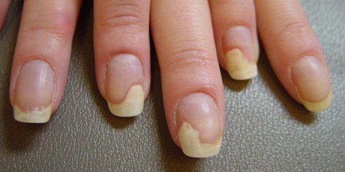 Грибковое поражение ногтей рук