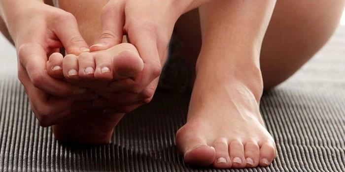 Чешутся пальцы ног причины и лечение