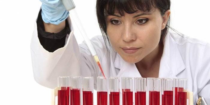 Лаборант делает анализ крови