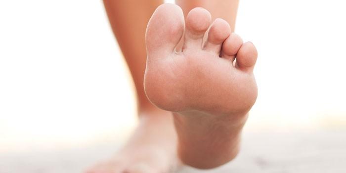 Грибок на ногах. Как выглядит и чем лечить в домашних условиях
