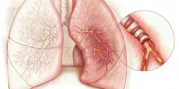 Схема эмфиземы легких