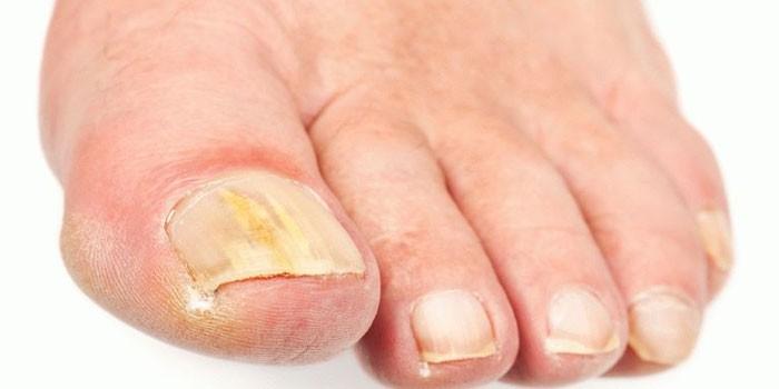 Как лечить грибок ног народными средствами