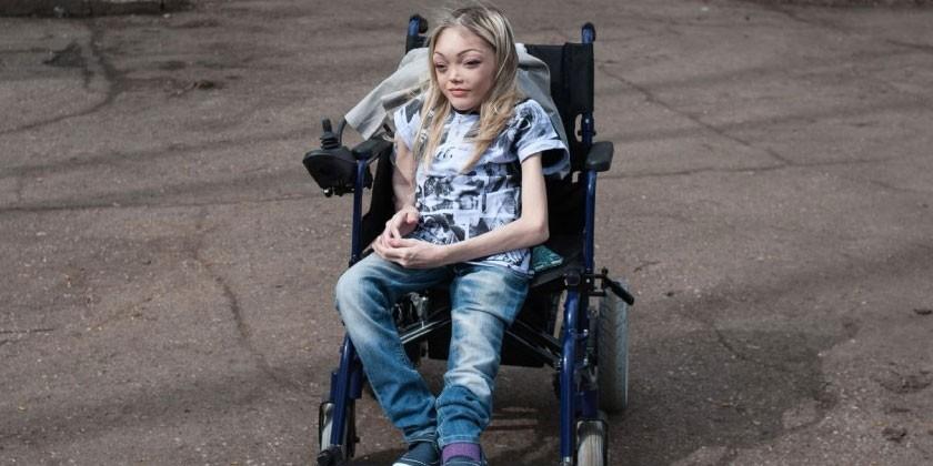 Женщина с синдромом Олбрайта