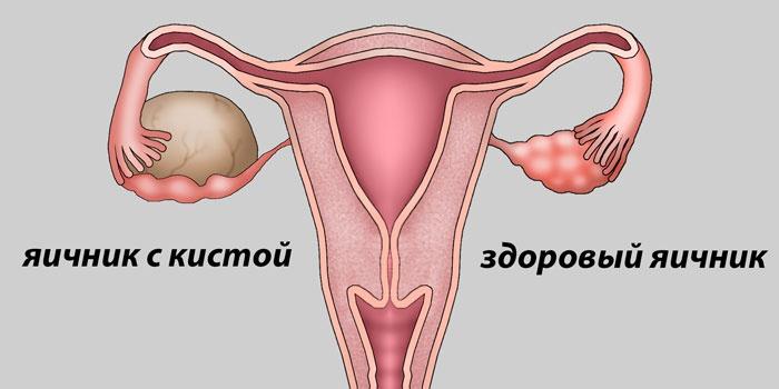 Схема кисты яичников