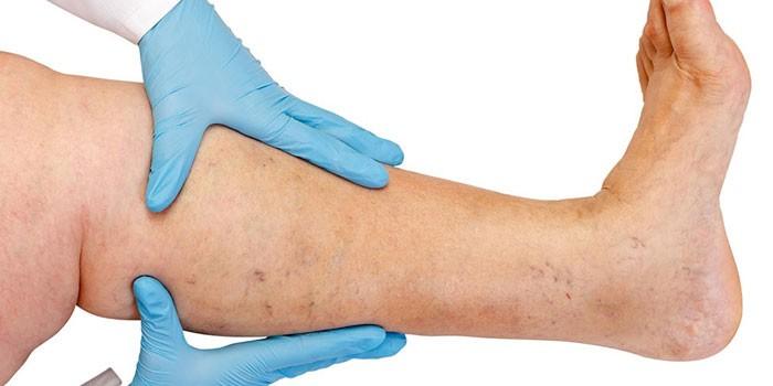 Врач осматривает варикозное расширение вен на ноге пациента
