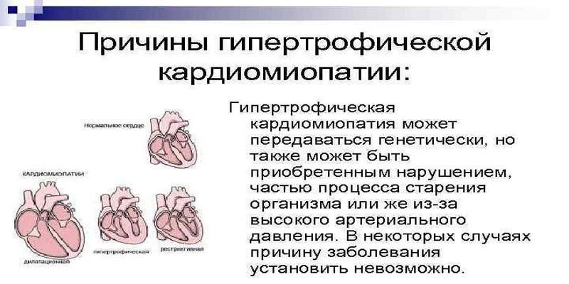 Причины гипертрофической кардиомиопатии