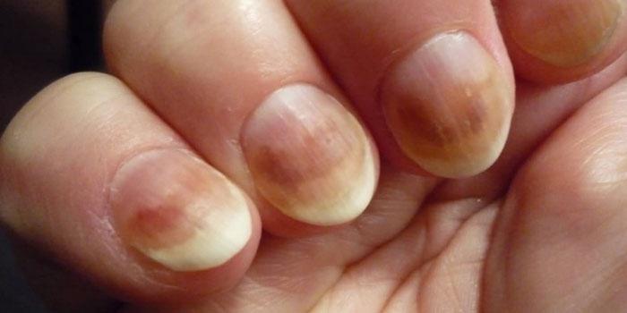Какие препараты помогают от грибка ногтей