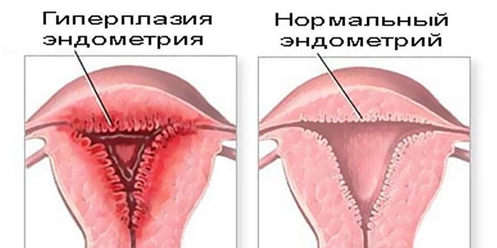 Схема гиперплазия эндометрия