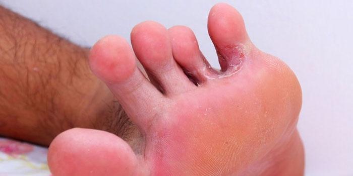 Грибковое поражение на ноге
