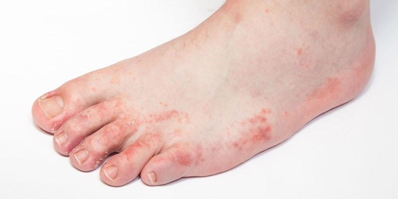 Аллергический дерматит на коже