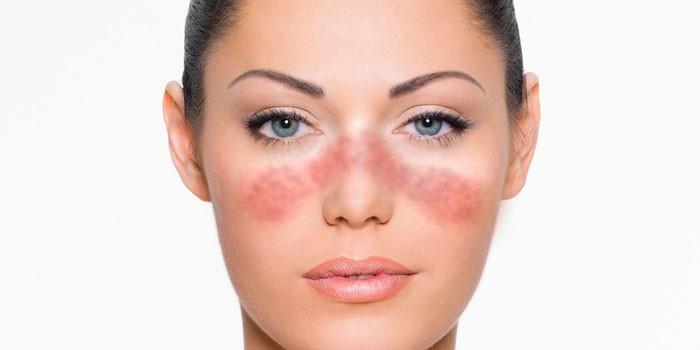 Симптом красной волчанки на лице