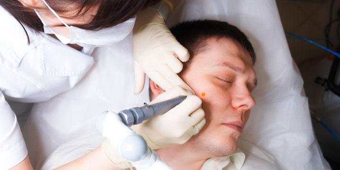 Дерматолог проводит лазерное удаление папилломы с лица пациента