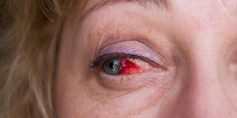 Признаки инсульта глаза