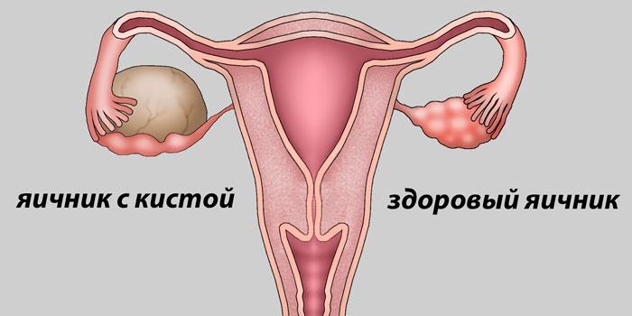Схема здорового и кистозного яичника