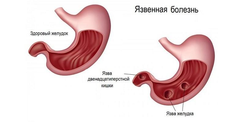 Схема язвенной болезни желудка
