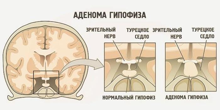 Нормальный гипофиз и аденома
