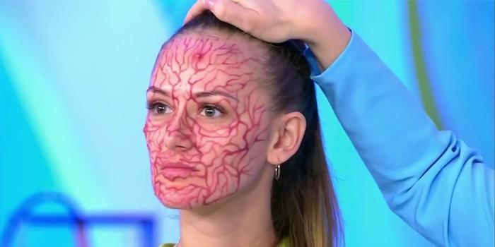 Кровеносные сосуды на лице