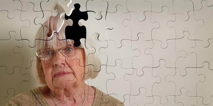 Синдром Альцгеймера у женщины