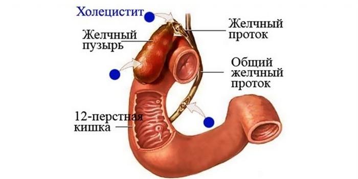 Локализация холецистита