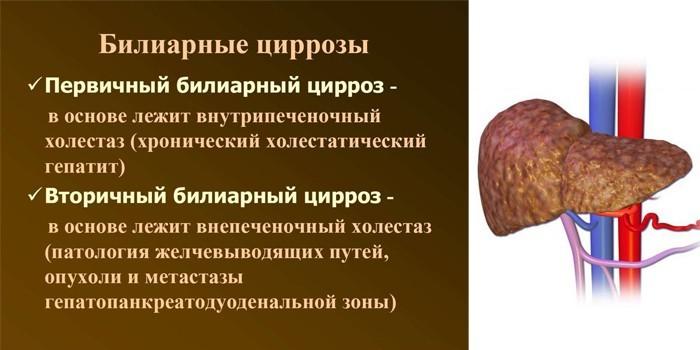 Билиарные циррозы