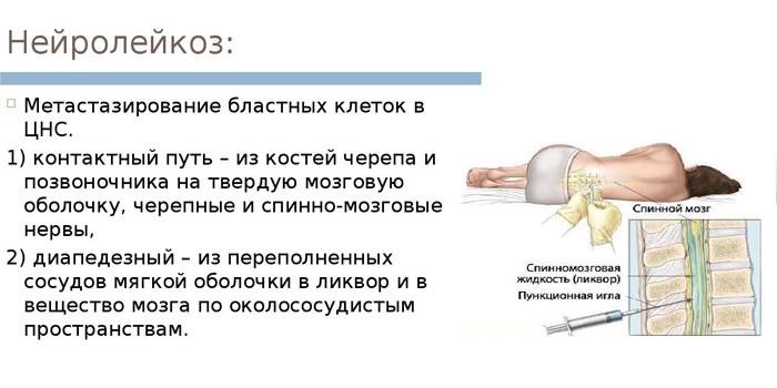 Нейролейкоз