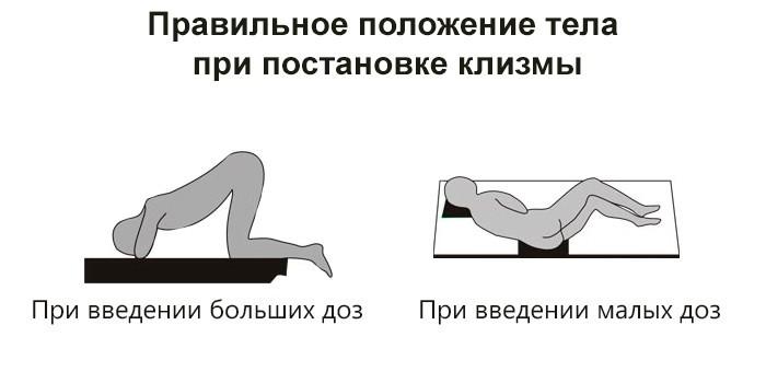Правильное положение тела при постановке клизмы