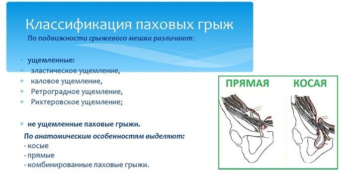Классификация паховых грыж