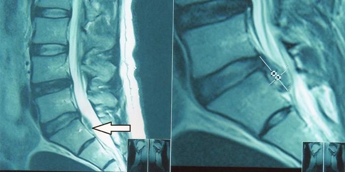 МРТ снимки грыжи