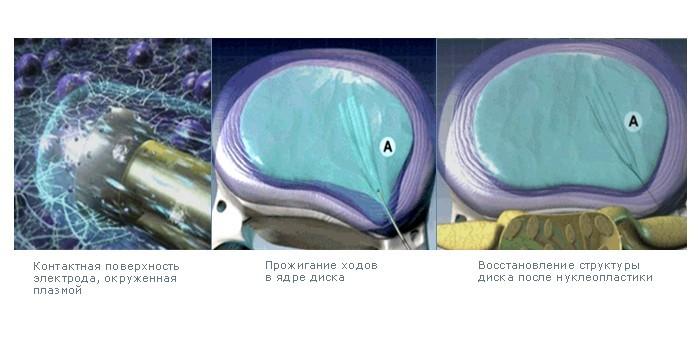 Проведение нуклеопластики
