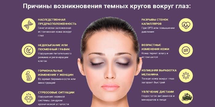 Причины возникновения темных кругов вокруг глаз