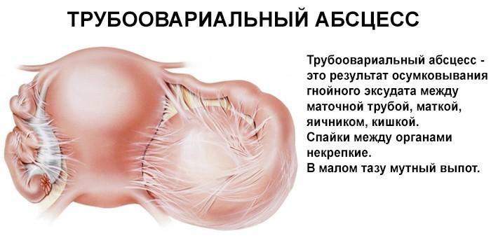Тубоовариальный абсцесс