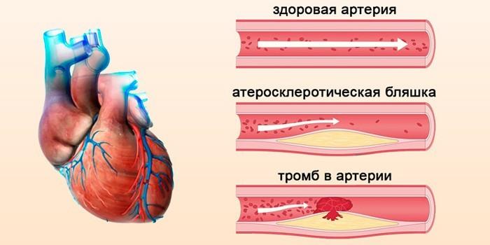 Атеросклеротическая бляшка и тромб в сосуде