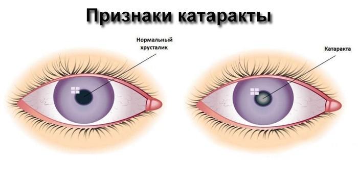 Проявления катаракты