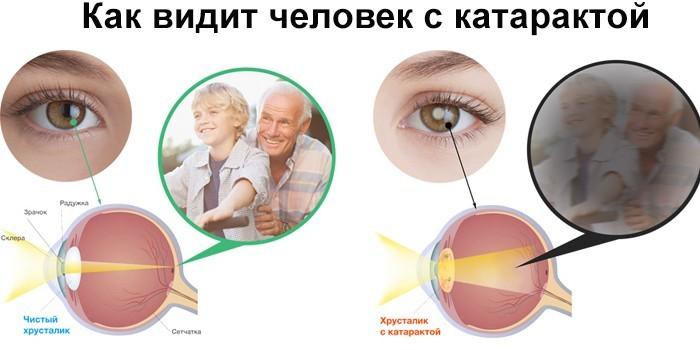 Зрение человека с катарактой