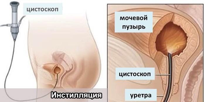 Процедура инстилляции