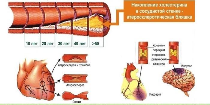 Атеросклероз, тромбоз, инфаркт и инсульт